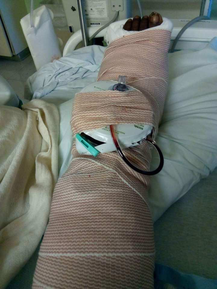 Dr  Matthew Brant Performs Total Ankle Replacement, Relieving